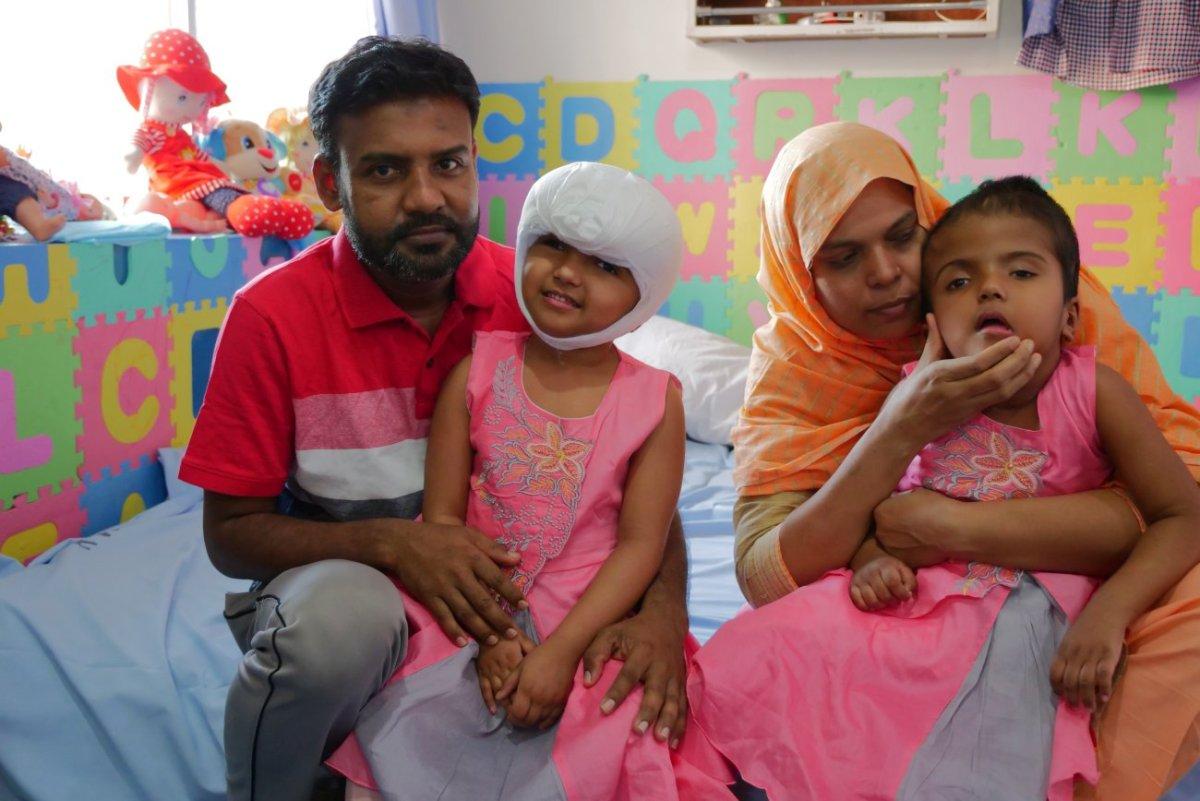 Szétválasztott sziámi ikrek: sürgős műtéten esett át az egyik kislány -  Ripost
