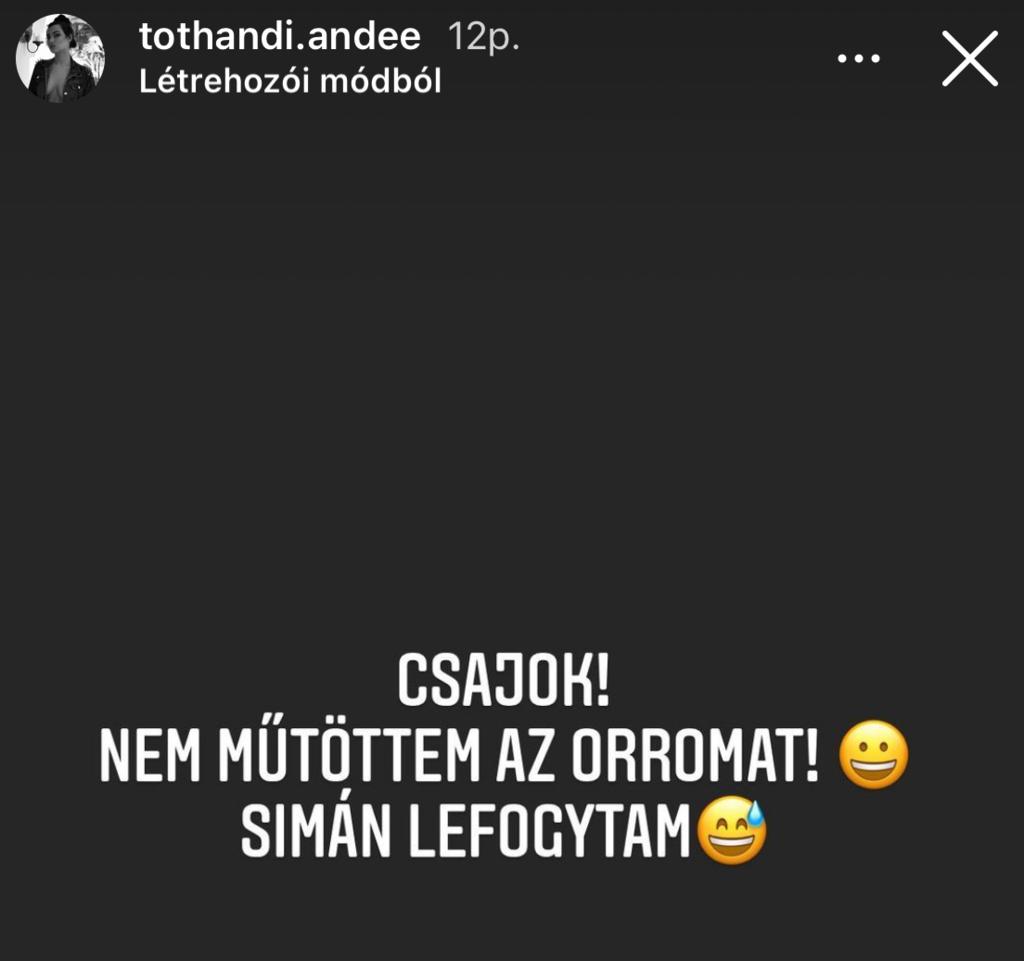 Tóth Andi plasztika