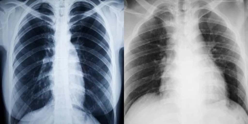Hosszú távon súlyosan tönkre teheti a tüdőt a koronavírus