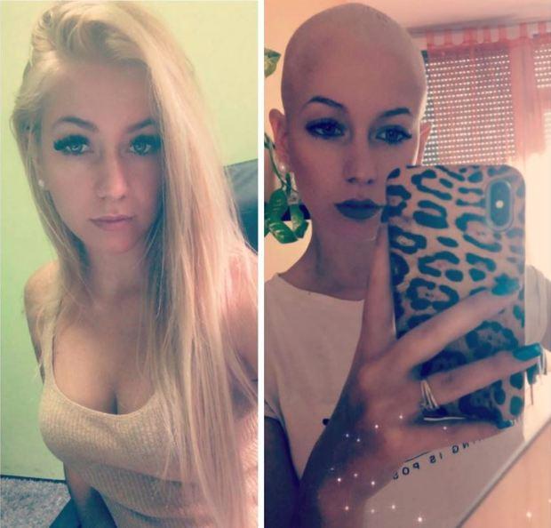 hogyan lehet lefogyni kemoterápia után whatsapp